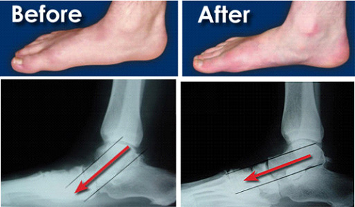 Surgery for Flat Feet