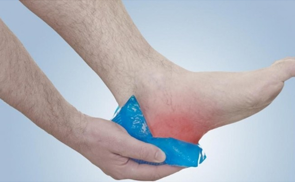 Ice treatment for Plantar fasciitis