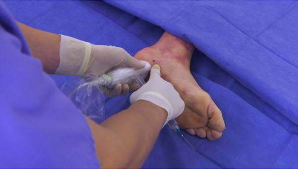 Plantar fasciitis surgery