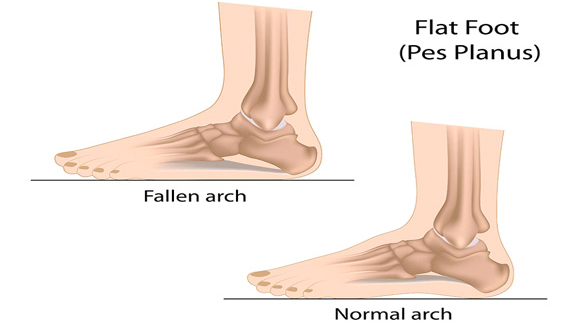 Flatfoot syndrome