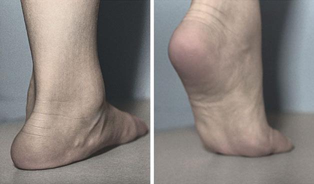 Flexible Flat Foot