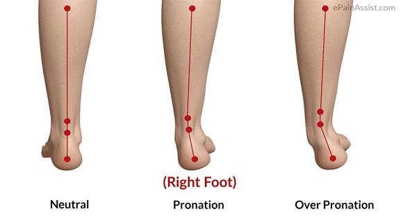 Symptoms of Flatfoot