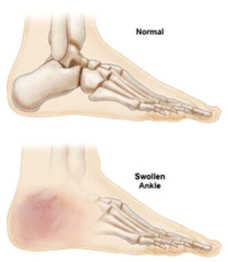 Factors that increase your risks of flatfeet
