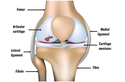 Cartilage damage in the knee and ankle
