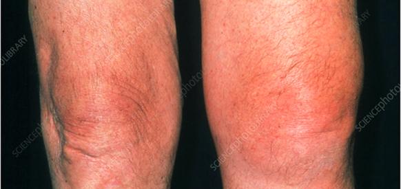 Symptoms of Cartilage Damage
