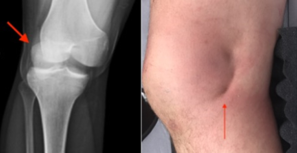 Knee and Ankle Cartilage Damage Surgeon