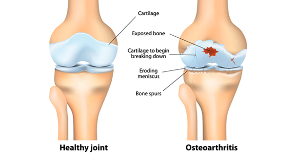 Complications of Knee and Ankle Cartilage Damage