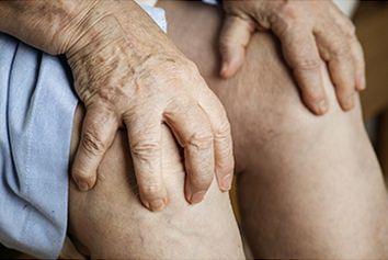 Factors capable of increasing your risk of Osteoarthritis
