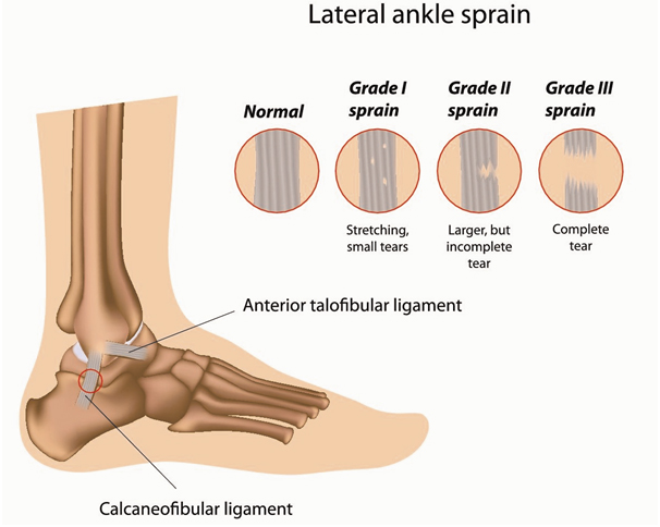 The severity of ankle sprains