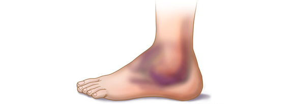 Common Symptoms of High Ankle Sprain and Lateral Ankle Sprain