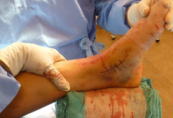 Ankle sprain surgery singapore