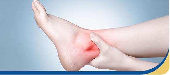 Ankle sprain Surgeon singapore