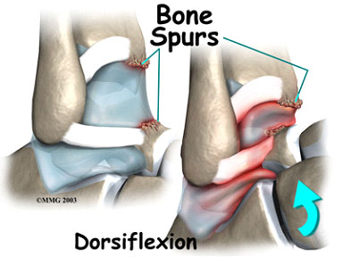 Risks of developing ankle bone spurs