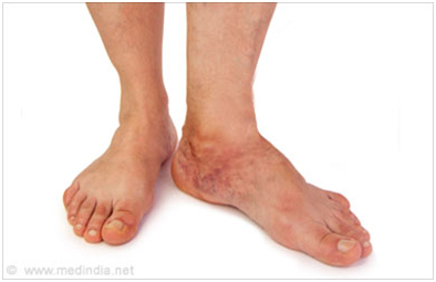 Diagnosis of a stress fracture
