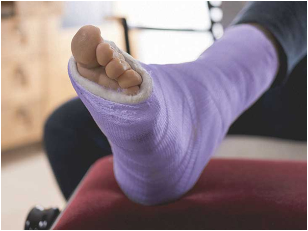 Nonsurgical treatment for stress fracture