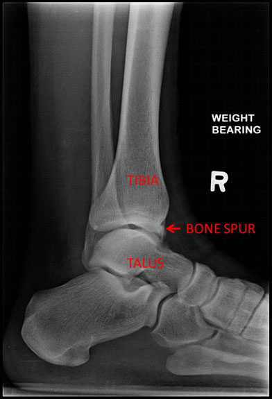 Diagnosis of ankle bone spurs
