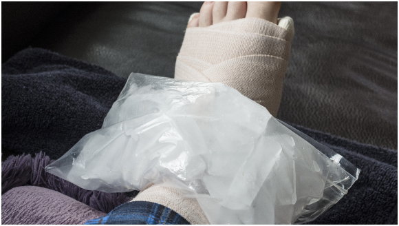 Ice treatment for stress fracture