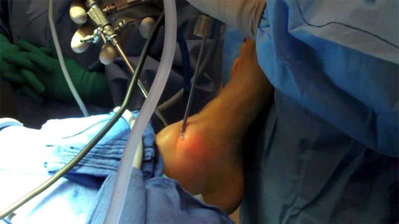 Ankle bone spurs surgery singapore