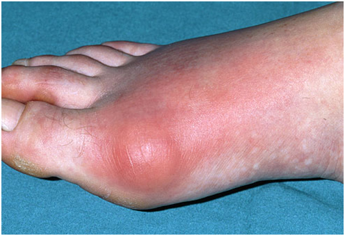 Symptoms of big toe gout