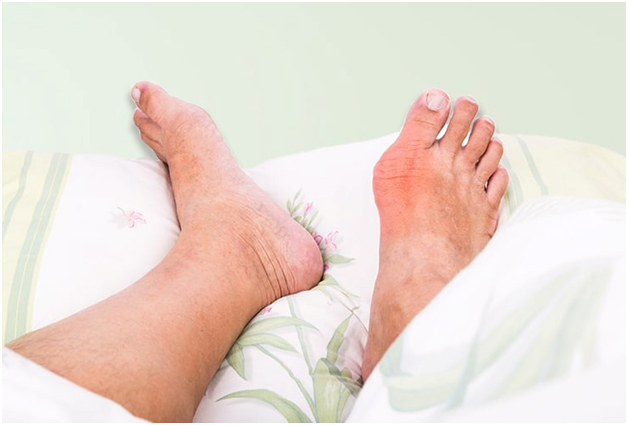 Treatments for Big Toe Gout