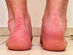 Symptoms of Haglund's Syndrome