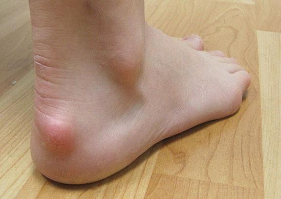Haglund's syndrome treatment