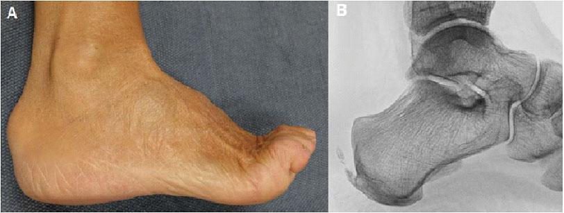 Diagnosis of haglund's syndrome