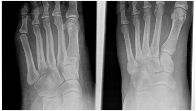 Stress Fractures Treatment