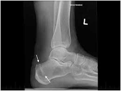 Bones in the foot and ankle affected by a stress fracture