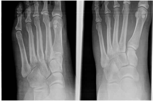 Stress Fractures Surgery