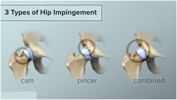 Three Type Hip SyndromE