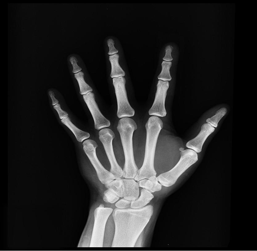 Benign bone fracture