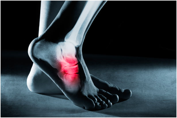 Foot & Ankle sports Injury