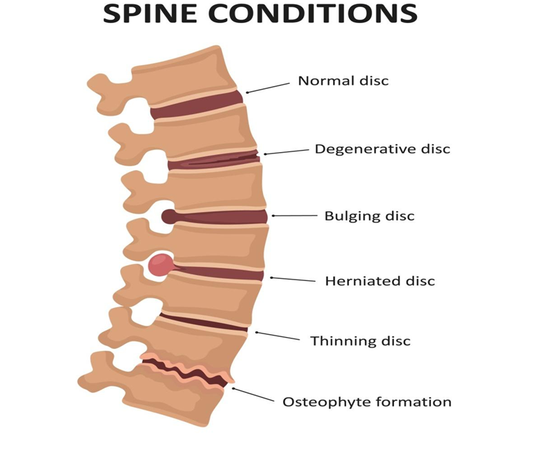 different types of spine condition