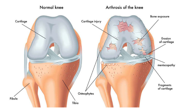 arthrosis of the knee