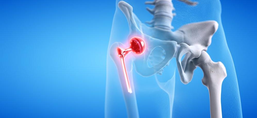 types of orthopedic implants
