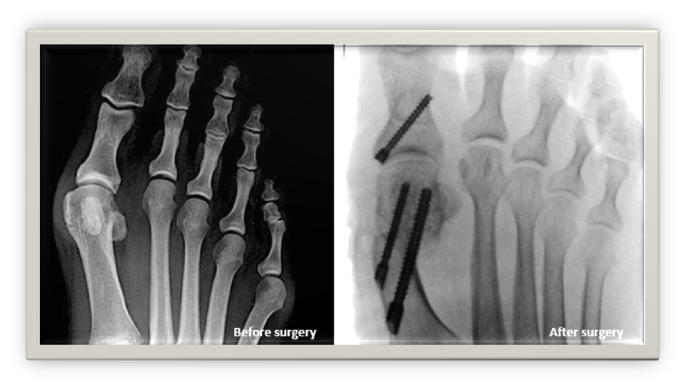 Keyhole Bunion Surgery treatment Singapore