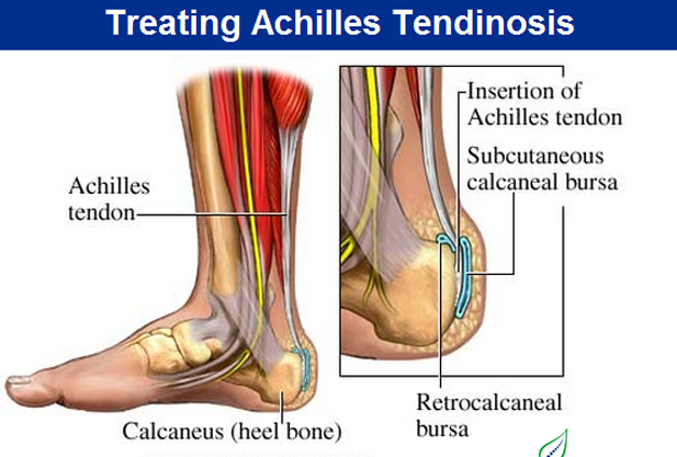 Treatment of Inflamed Achilles in Singapore