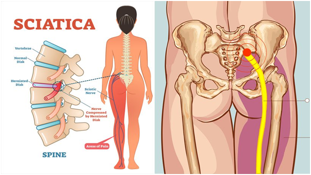 Treatment of sciatica