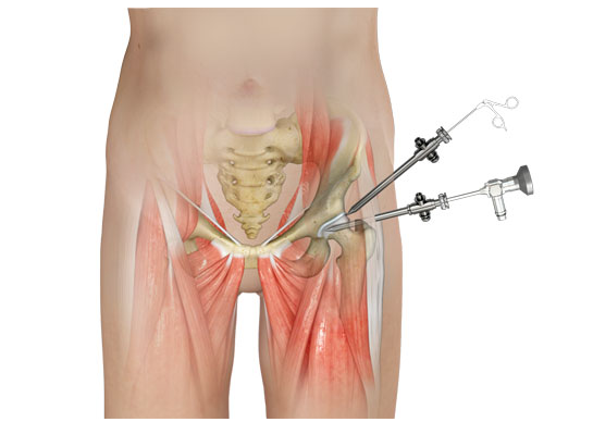 Hip arthroscopy Singapore