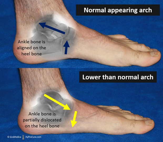 Causes of progressively collapsing foot