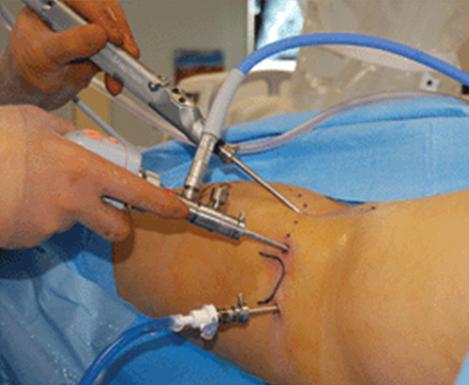 Hip arthroscopy surgical procedure